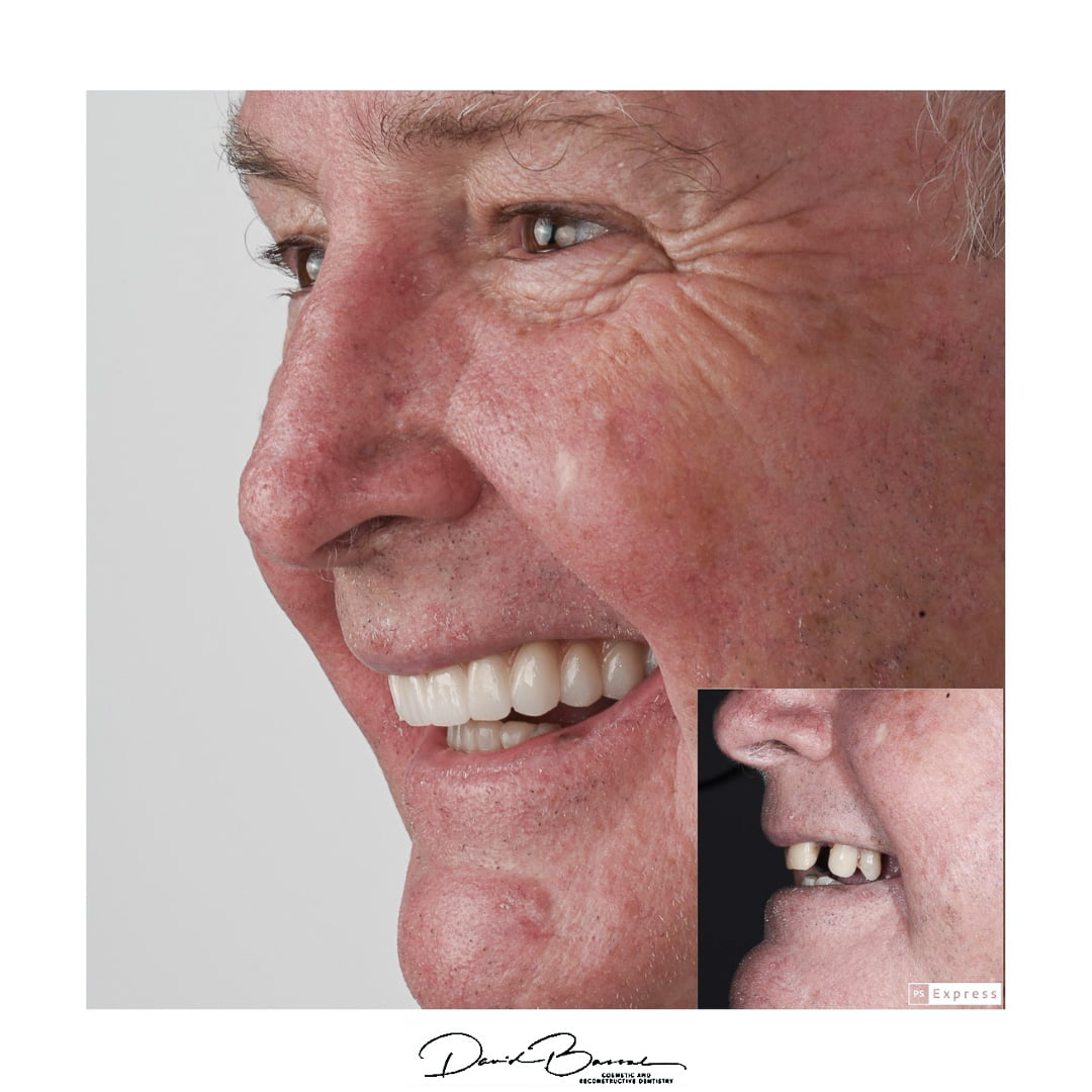 Teeth on Implants - Before and After