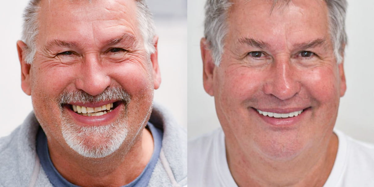 Teeth on Implants Before and After